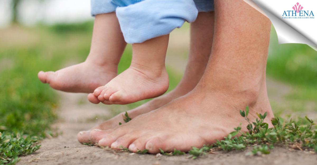piede piatto infantile
